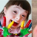 Downs Syndrome Quiz