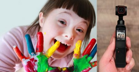 Another-type-of-Down-Syndrome